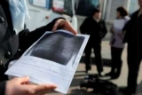 Кияни зможуть безкоштовно обстежитися на пересувному флюорографі: адреси